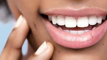 vita fläckar tänder