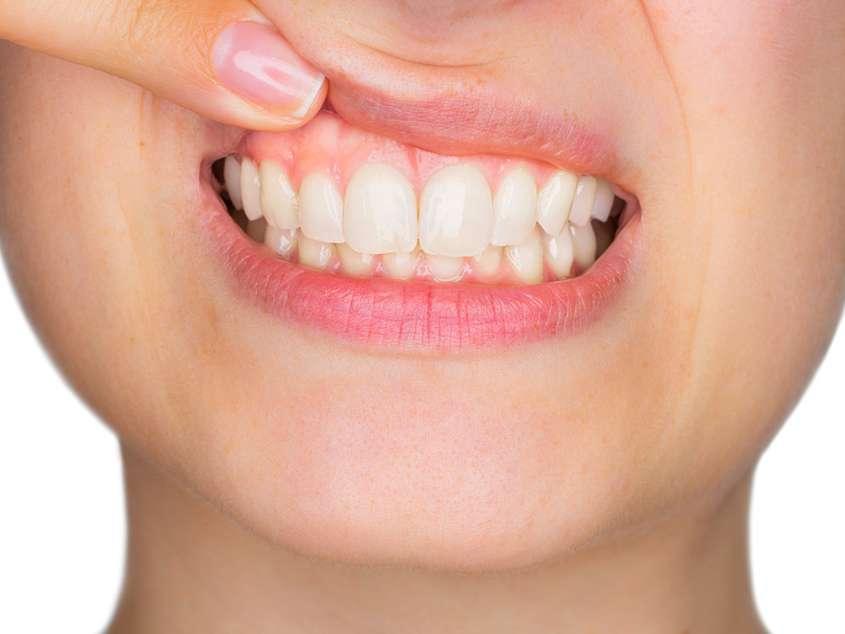 svampinfektion i munnen symtom